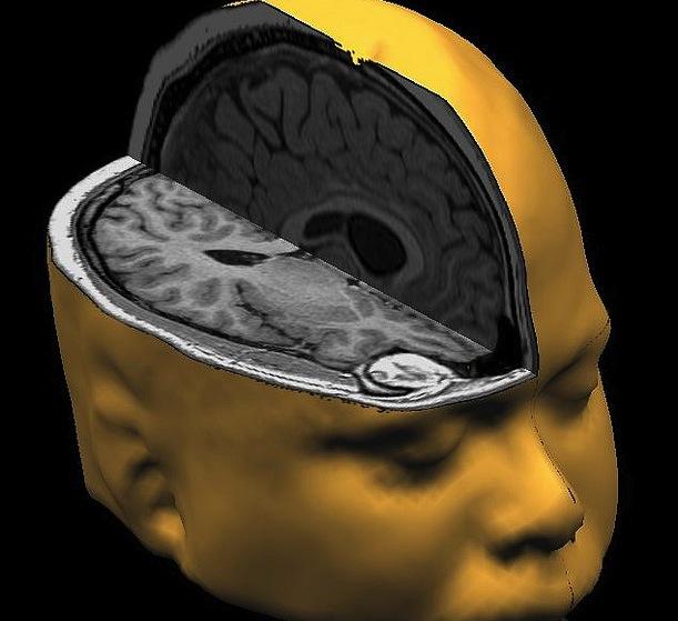 Voter_brain_Rutchick_Nexus