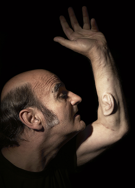"Stelarc's ""Ear on Arm,"" in London, Los Angeles, and Melbourne, 2006."