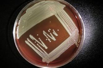 elizabethkingia-anophelis-plate