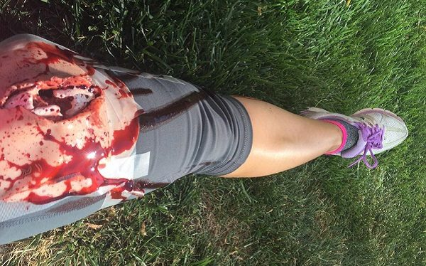 Jenny's 'wounded' leg from a disaster drill.